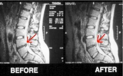 Image result for spinal decomprsiion therapy